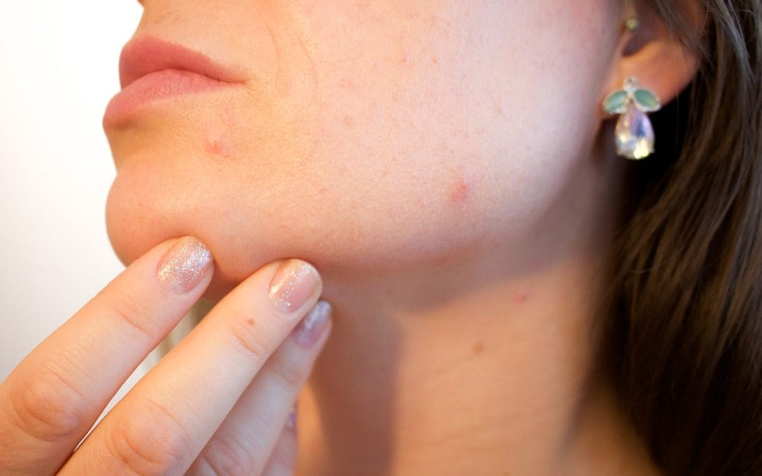 Why Your Nose Strips Aren't Cleaning Out Your Pores