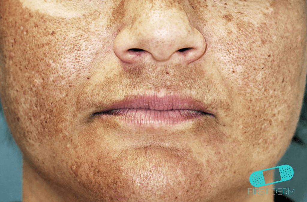 Black Skin Conditions and their treatment Melasma ICD-10-L81.1