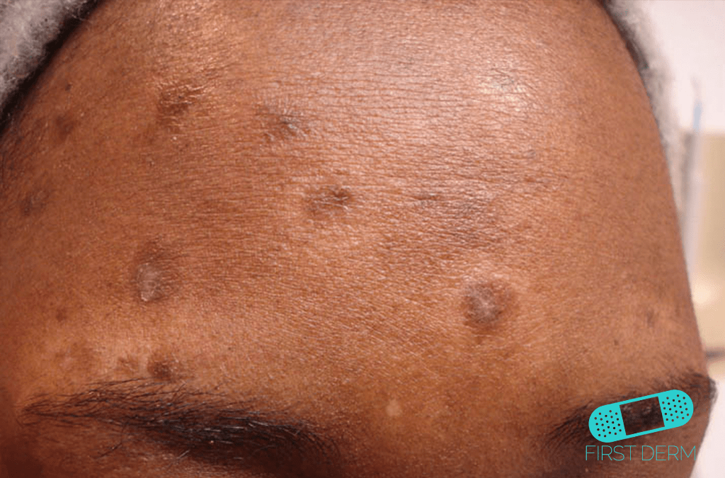 Black Skin Conditions and their treatment Postinflammatory Hyperpigmentation ICD-10-L81.0