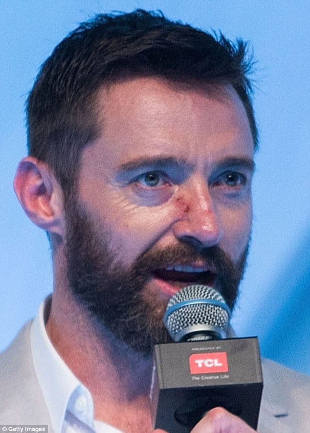 Scar on nose from skin cancer removal in 2014 basal cell carcinoma hugh jackman