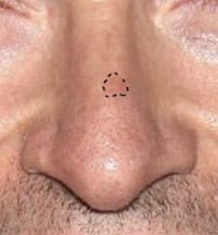 Likely Contour of Hugh Jackman's Basal Cell Carcinoma in 2013