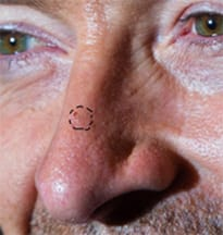 Likely Contour of Hugh Jackman's Basal Cell Carcinoma in 2014