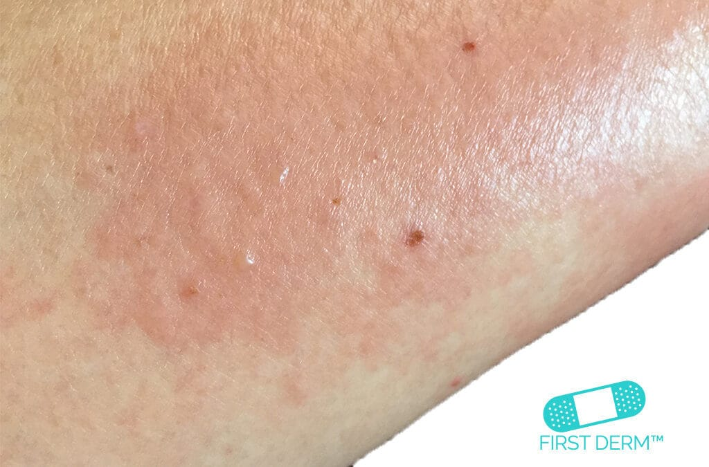 Itchy rash Dermatitis_on arm_ICD 10 L30.9