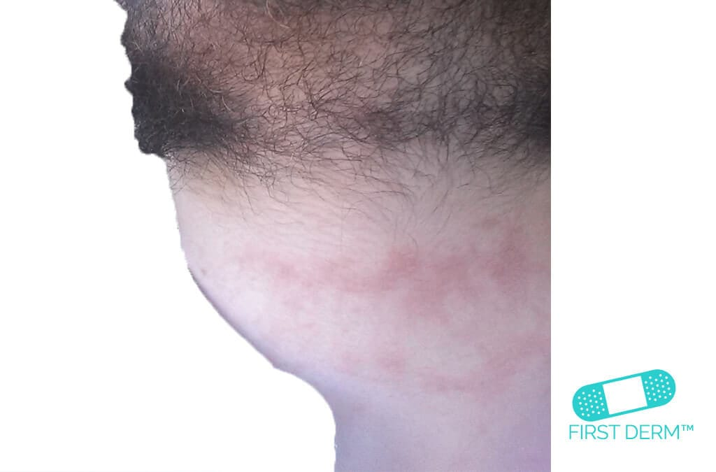 Itchy rash Eczema_Neck_ICD_10_L30.9