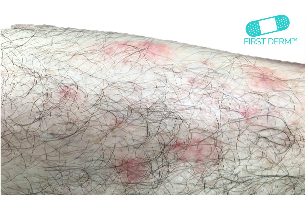 Psoriasis_on leg_ICD_10_L40.9