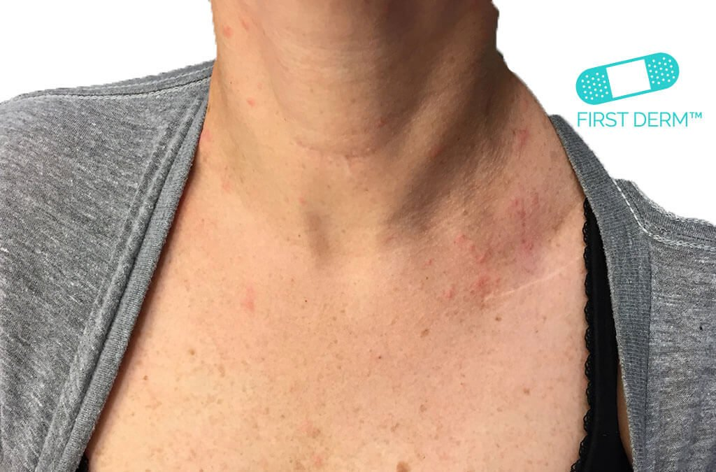 Online Dermatology - Itchy red rash and spots on your skin ...