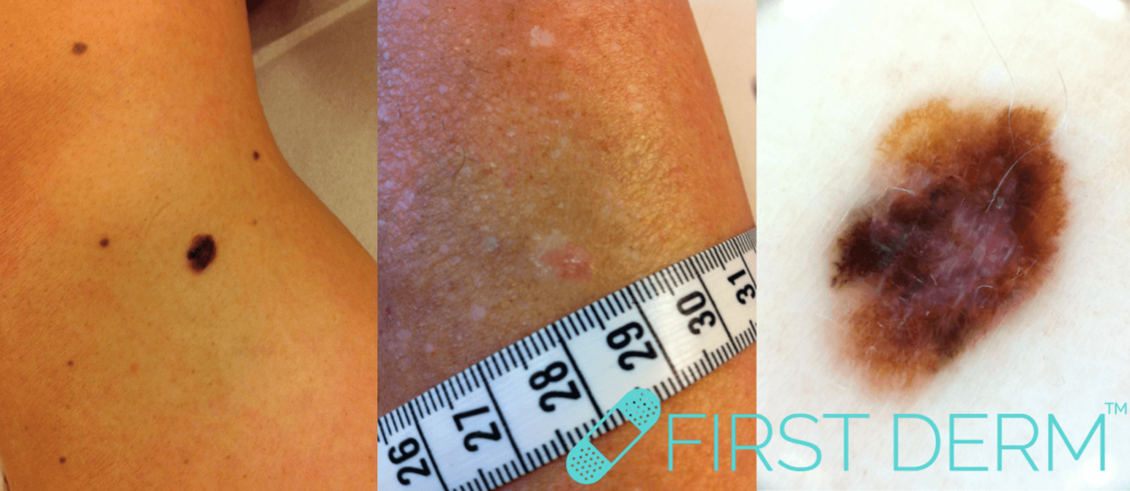 teledermatology skin cancer melanoma leg ICD 10 44.9