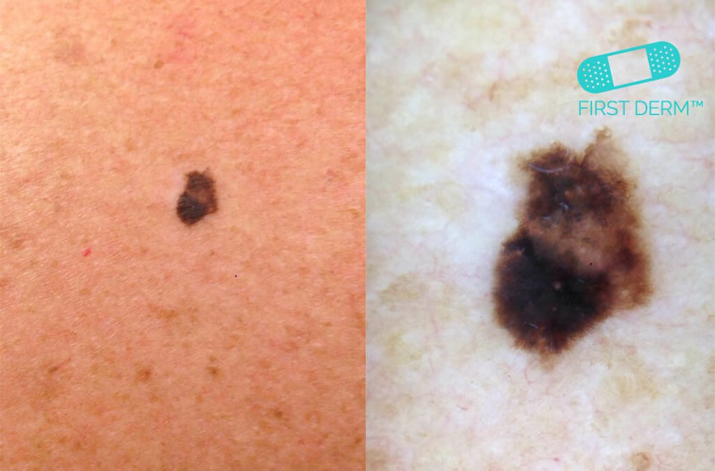 Can you spot the cancerous mole? - Online Dermatology