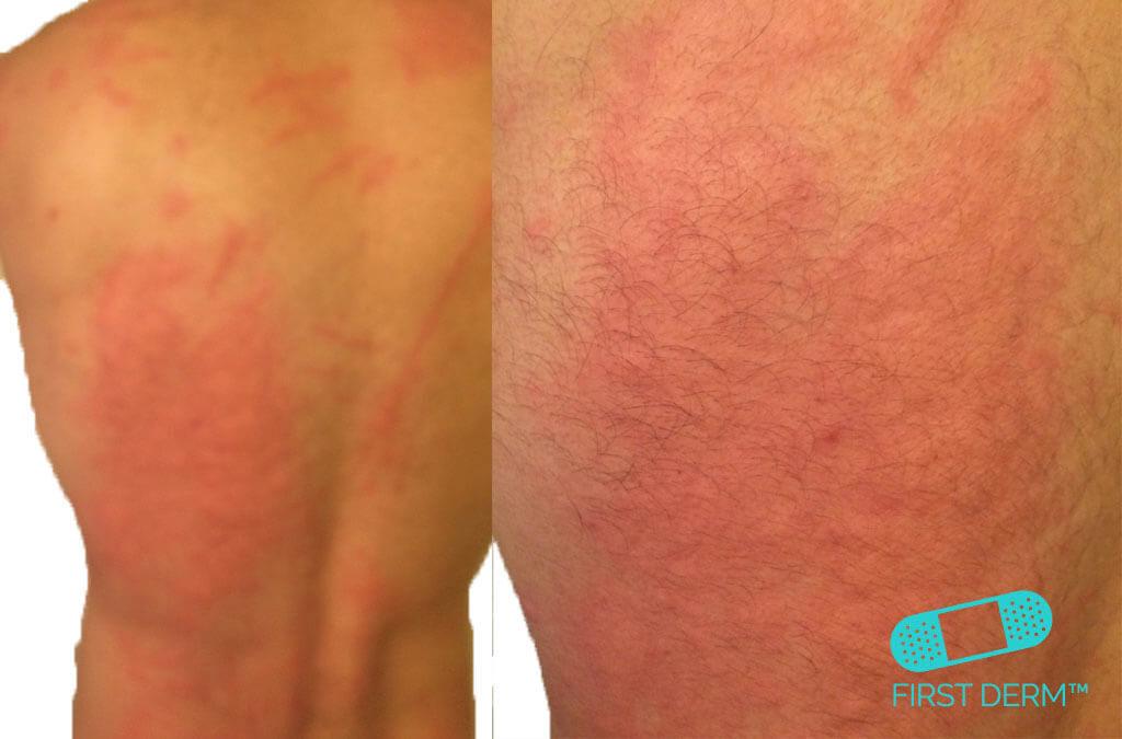 Kliande hud bilder Dermografism urtikaria nässelutslag rygg ICD10 L50.9