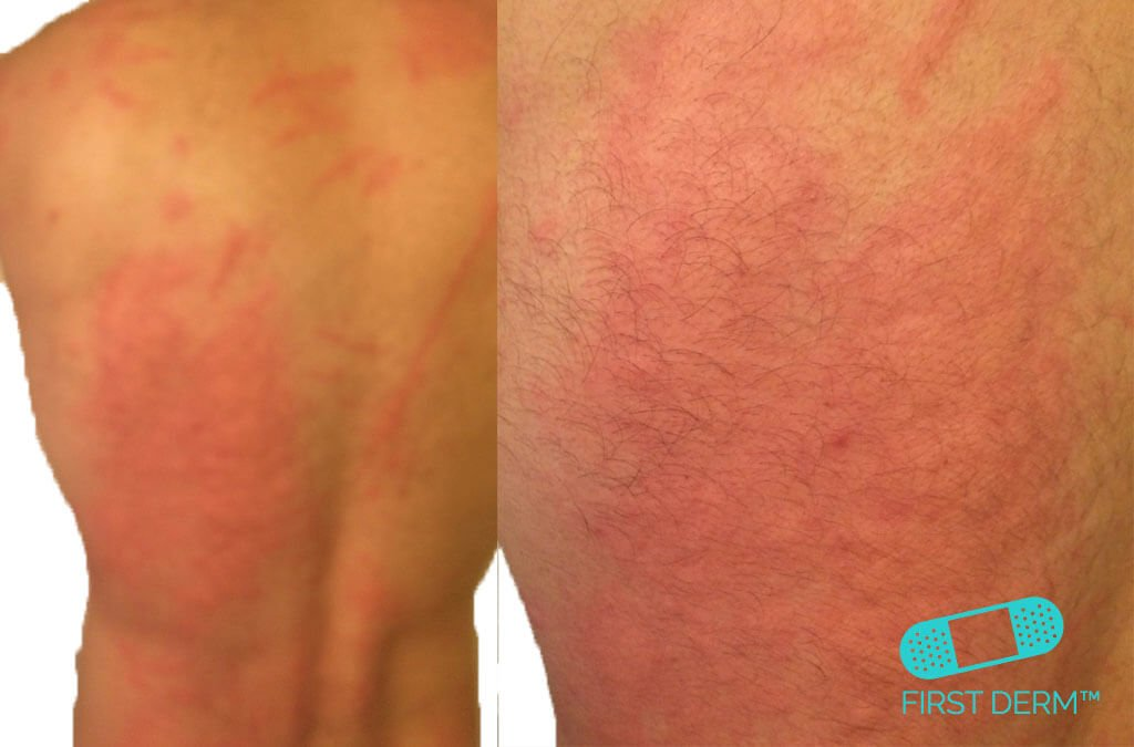 red-rash Dermographism urticaria hives on back ICD10 L50.9
