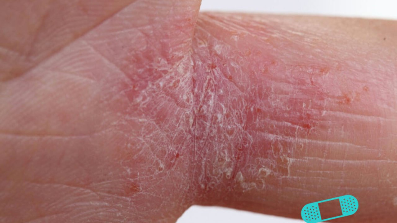 dry itchy patches on skin spreading