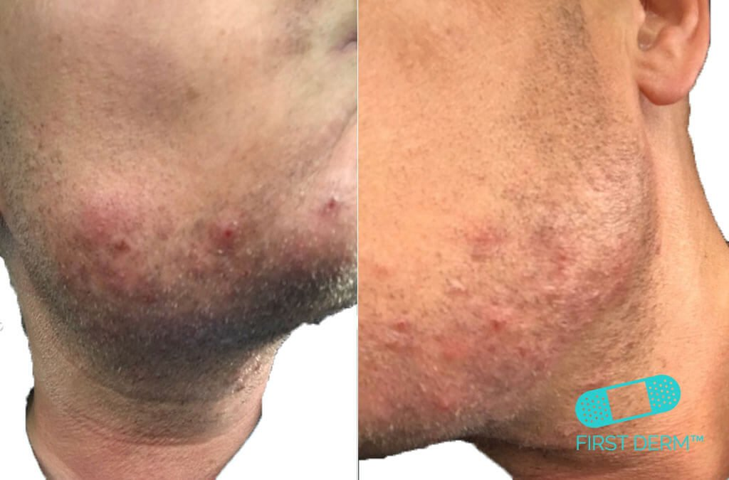 En hudläkare tips för inåtväxande hår pseudofolliculitis Barbae follikulit ansikte & hals ICD 10 L73.1