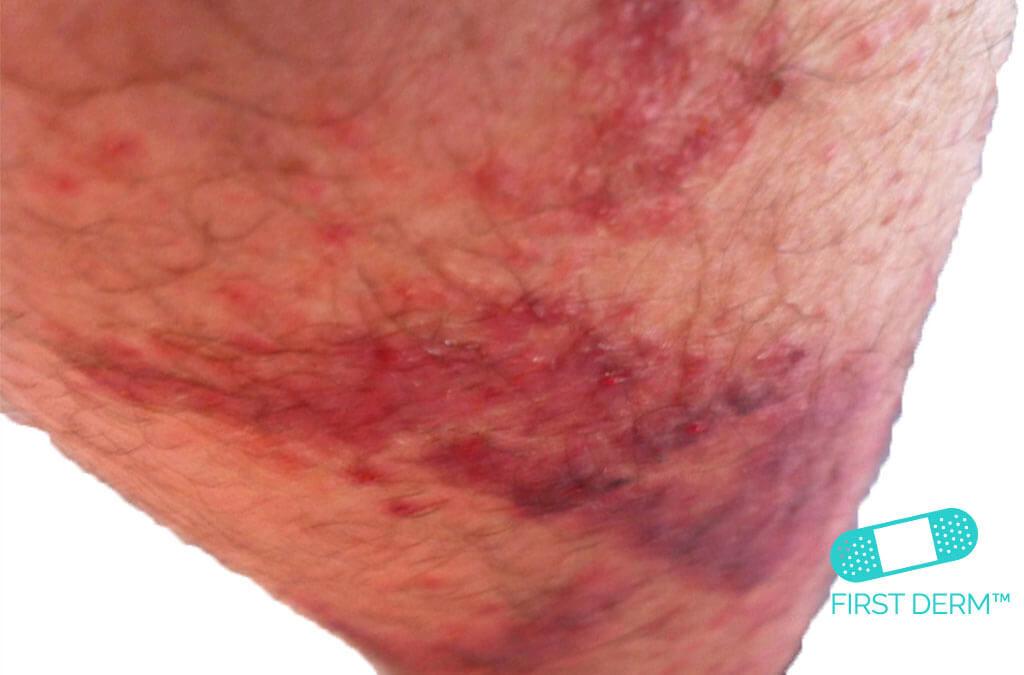 Röda prickar på hud KONTAKTDERMATIT ORSAKAD AV VÄXTER på benet ICD 10 L25.5