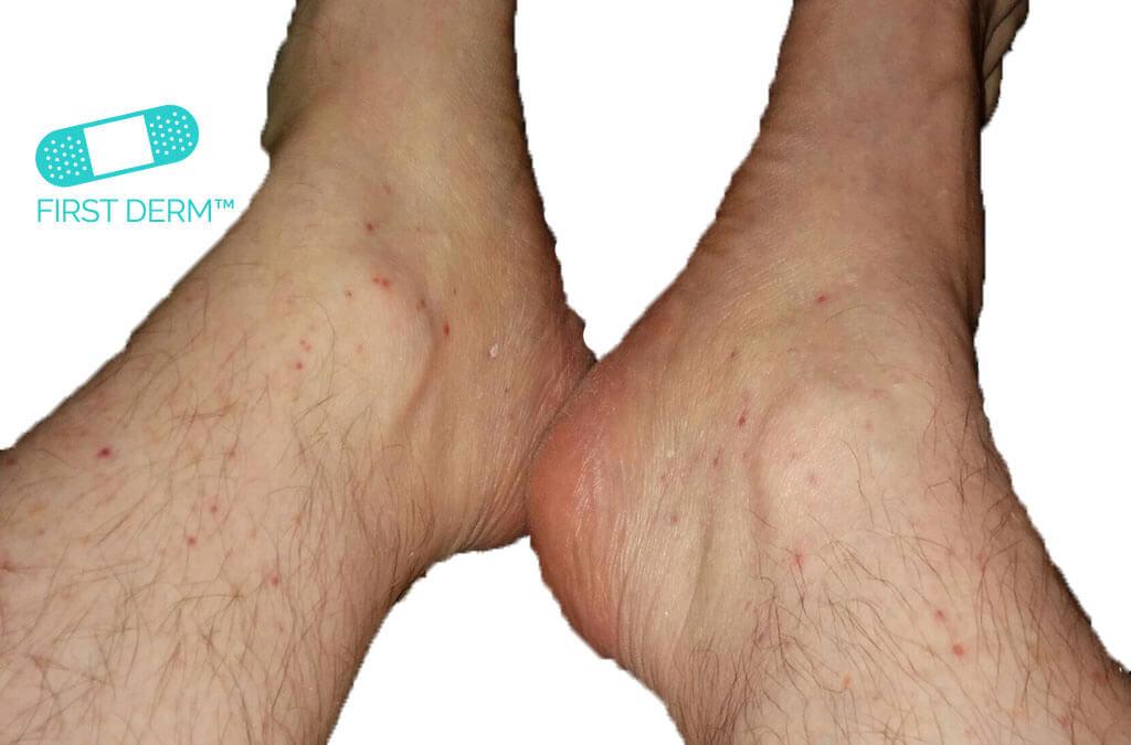 Röda prickar på hud LEUKOCYTOKLASTIK VASKULIT båda ben ICD 10 L95.9