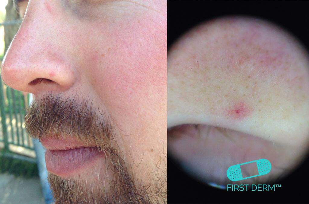 Röda prickar på hud Telangiectasia näsa dermatoskopi bild ICD 10 I78.9