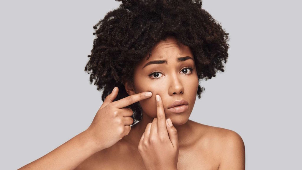 6 Ways To Treat Acne During Summer