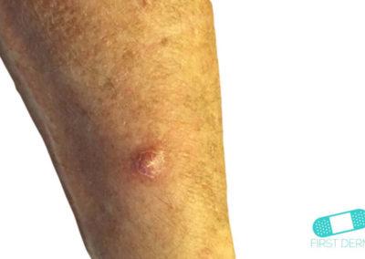 Absceso (10) pierna [ICD-10 L02.91]
