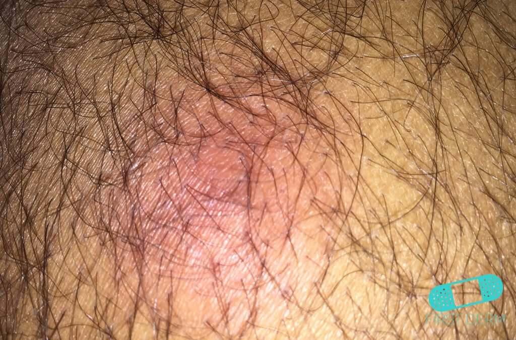 Abscess (06) skin [ICD-10 L02.91]