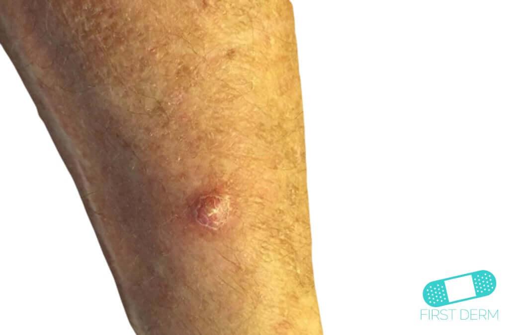 Abscess (10) leg [ICD-10 L02.91]