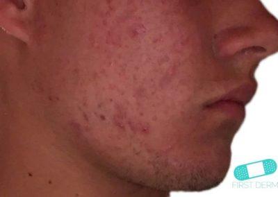 Acne Vulgaris (Akne) (05) ansikte [ICD-10 L70.0]