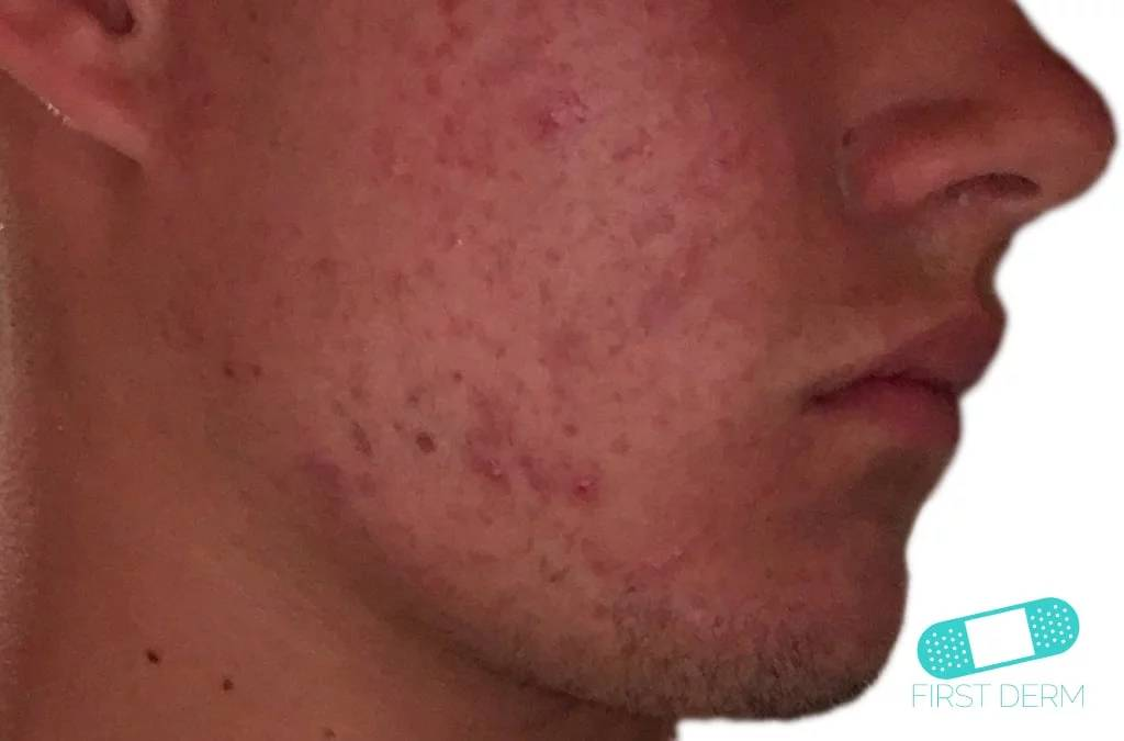 acne ansikte