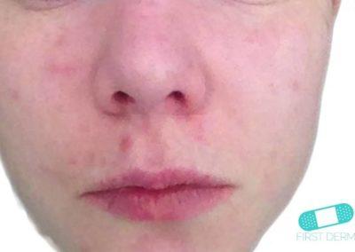 Acne Vulgaris (Akne) (07) ansikte [ICD-10 L70.0]