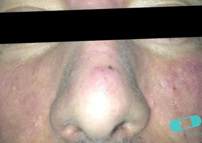Acne Vulgaris (Akne) (12) ansikte [ICD-10 L70.0]