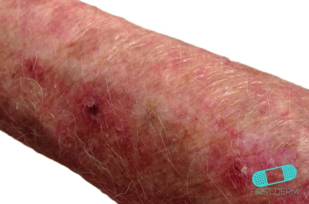 Actinic Keratosis (AK) (01) arm [ICD-10 L57.0]