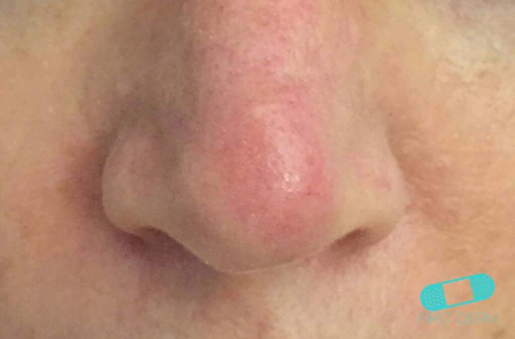 Actinic Keratosis (AK) (03) nose [ICD-10 L57.0]