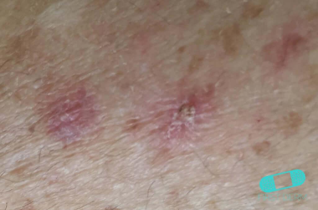 Actinic Keratosis (AK) (05) skin [ICD-10 L57.0]