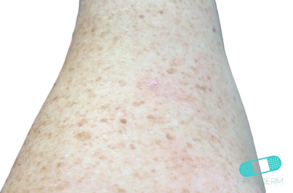 Actinic Keratosis (AK) (06) leg [ICD-10 L57.0]