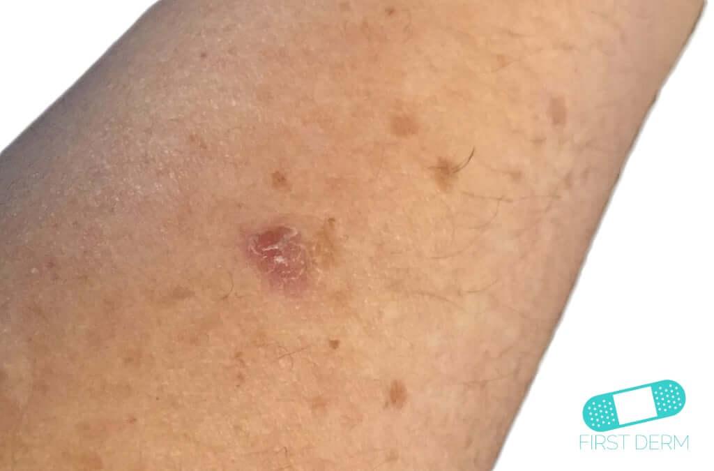 Actinic Keratosis (AK) (07) arm [ICD-10 L57.0]