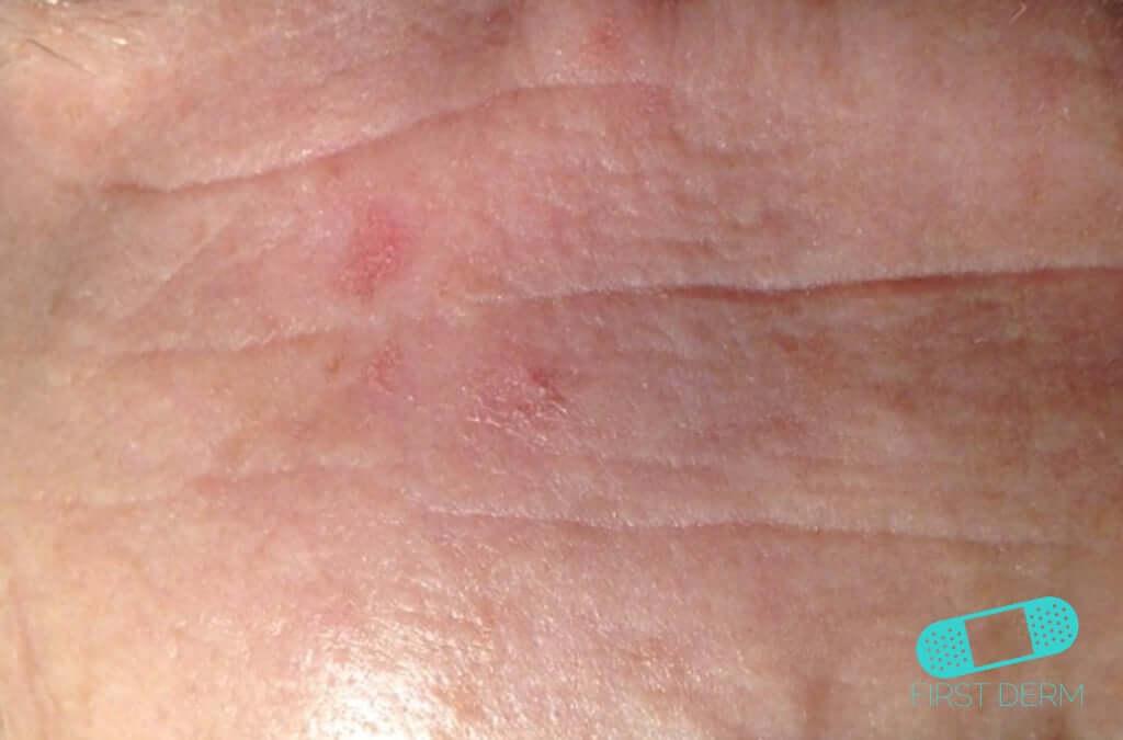 Actinic Keratosis (AK) (12) forehead [ICD-10 L57.0]