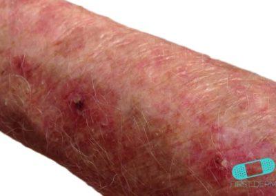 Aktinisk keratos (AK) (01) arm [ICD-10 L57.0]