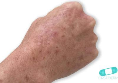 Aktinisk keratos (AK) (02) hand [ICD-10 L57.0]