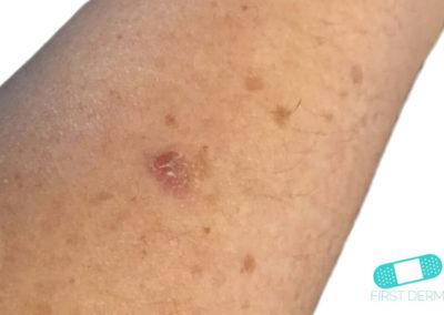 Aktinisk keratos (AK) (07) arm [ICD-10 L57.0]