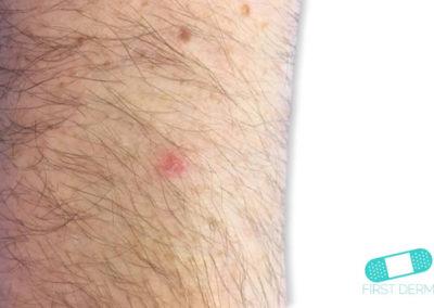 Aktinisk keratos (AK) (14) arm [ICD-10 L57.0]