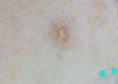 Aktinisk keratos (AK) (18) hud [ICD-10 L57.0]