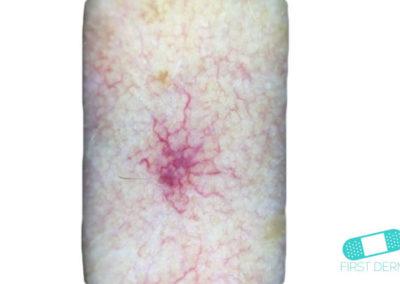 Angiom (01) arm [ICD-10 D18.01]