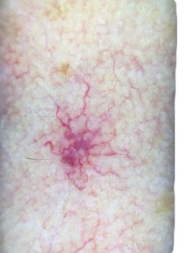 Angioma (01) arm [ICD-10 D18.01]