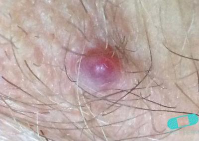 Angioma (10) groin [ICD-10 D18.01]