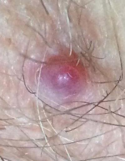 Angioma (10) skin [ICD-10 D18.01]