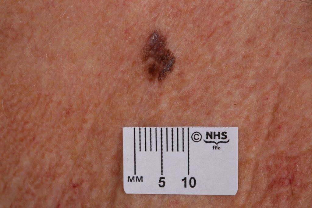 Artificial intelligence (AI) health chatbots test melanoma-neck NHS