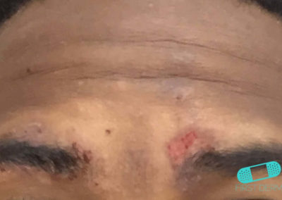 Atopic Eczema (03) eyebrow [ICD-10 L20.9]