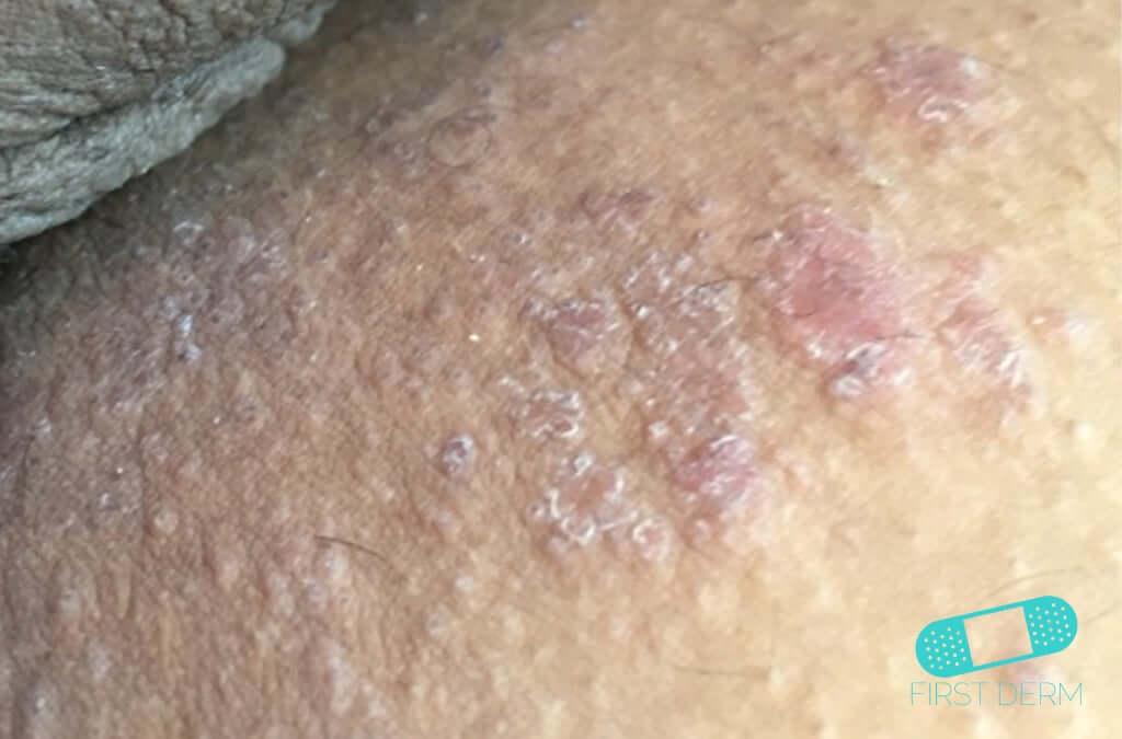 Atopic Eczema (05) skin [ICD-10 L20.9]