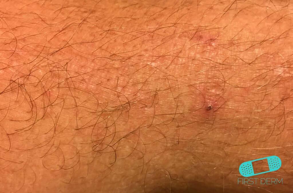 Atopic Eczema (08) skin [ICD-10 L20.9]