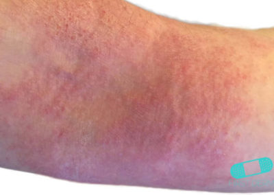 Atopic Eczema (09) arm [ICD-10 L20.9]