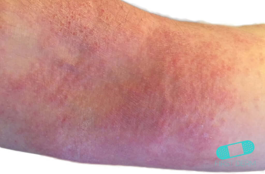 Atopic Eczema (09) arm [ICD-10 L20.9]