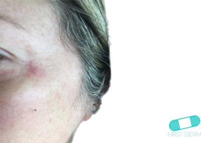 Atopiskt eksem (17) ansikte kvinna [ICD-10 L20.9]