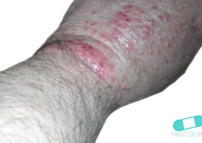 Bältros (herpes zoster) (02) arm [ICD-10 B02]